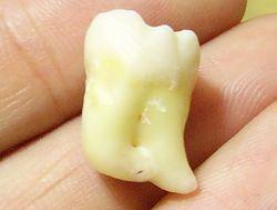 teeth01.jpg