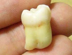 teeth02.jpg